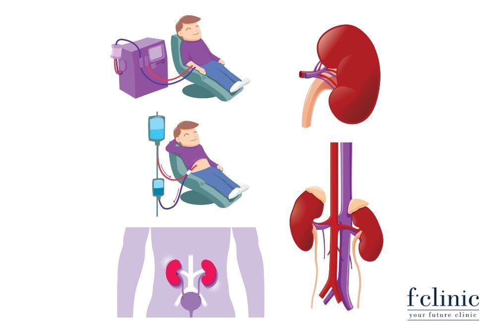 Điều trị bệnh thận bằng tế bào gốc