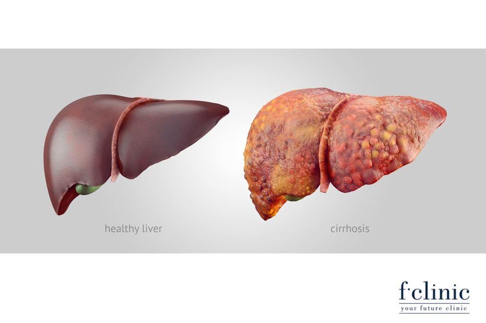 Điều trị bệnh gan bằng tế bào gốc