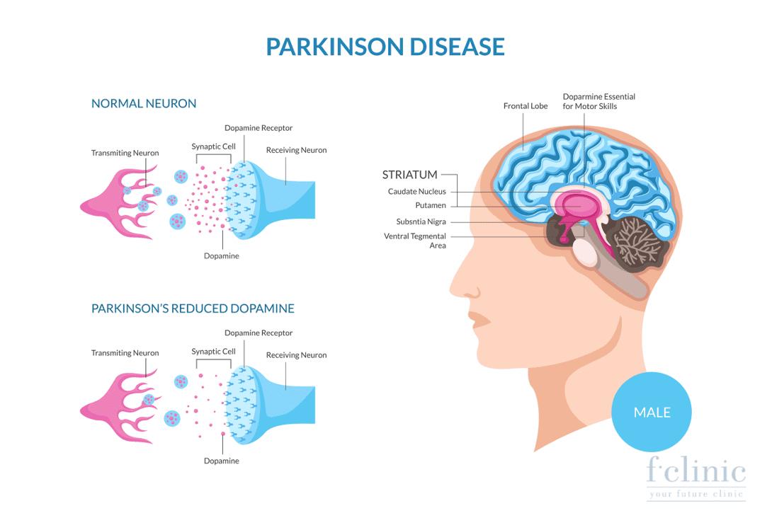 Điều trị Parkinson bằng tế bào gốc