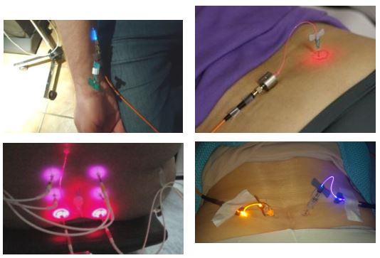 liệu pháp laser ánh sáng sinh học
