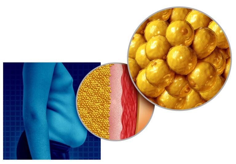 liệu trình giảm cân giảm mỡ trong máu